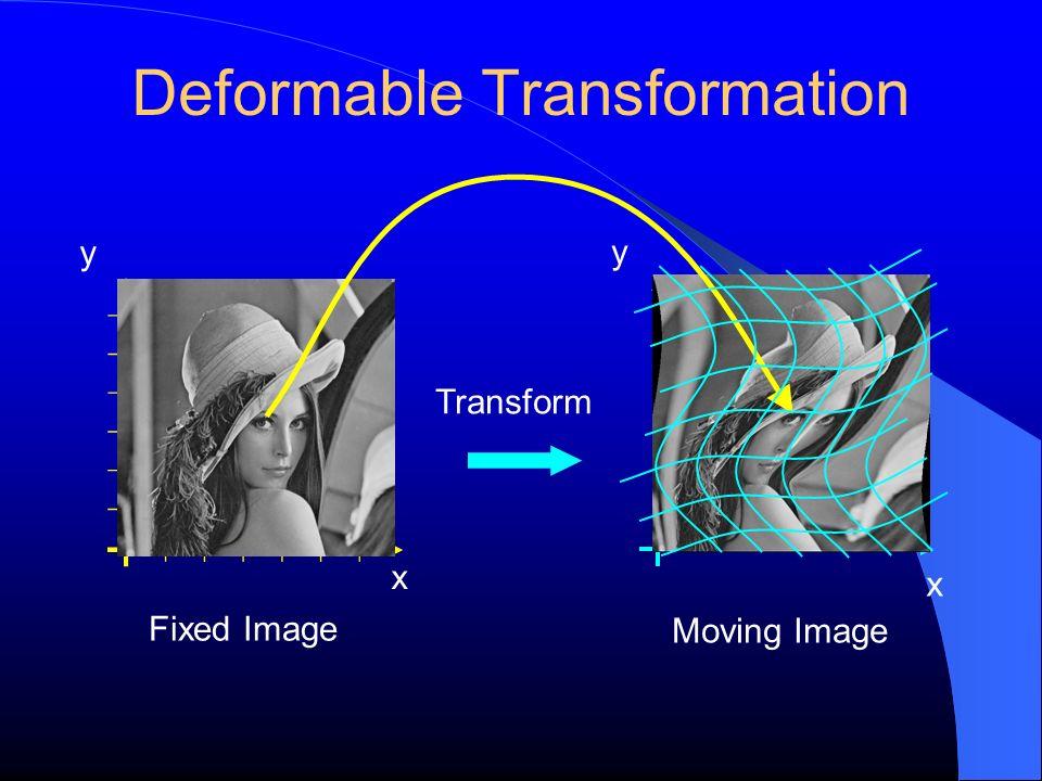 Deformable Transformation y Fixed Image Transform x y Moving Image x