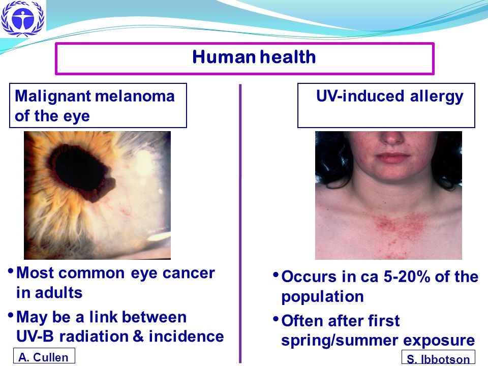 Most common eye cancer in adults May be a link between UV-B radiation & incidence Malignant melanoma of the eye A. Cullen Occurs in ca 5-20% of the po