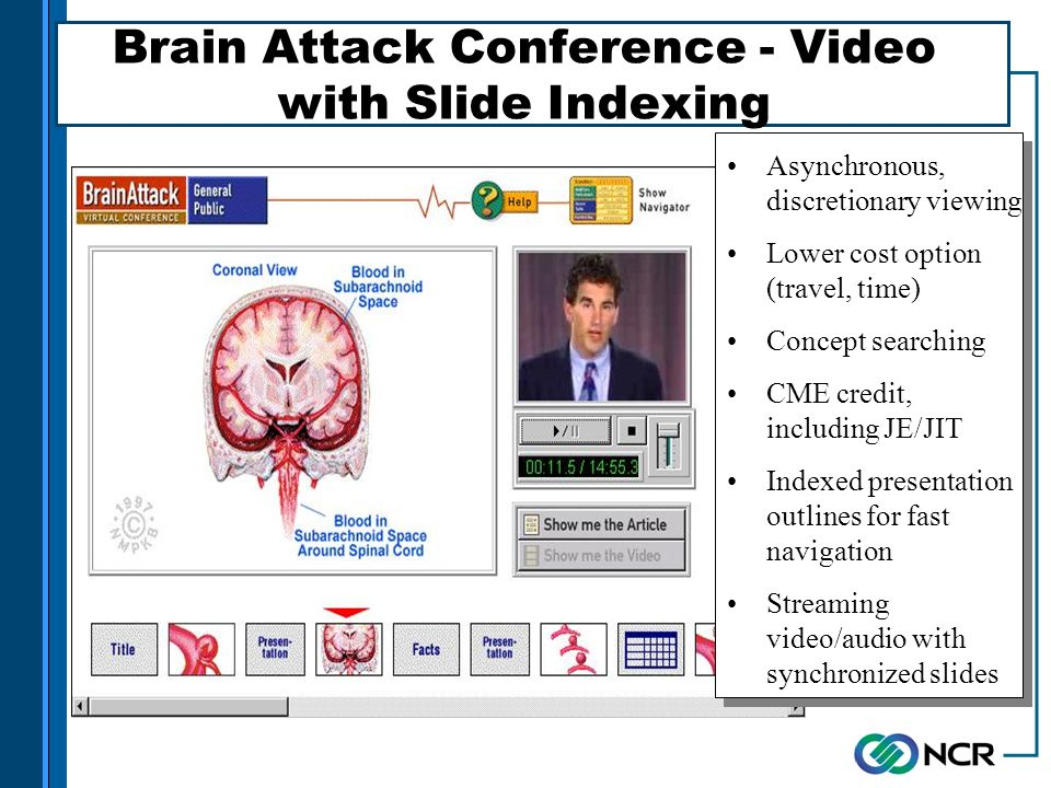 Asynchronous, discretionary viewing Lower cost option (travel, time) Concept searching CME credit, including JE/JIT Indexed presentation outlines for fast navigation Streaming video/audio with synchronized slides Brain Attack Conference - Video with Slide Indexing