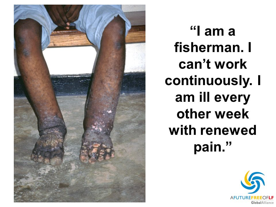 I am a fisherman. I cant work continuously. I am ill every other week with renewed pain.