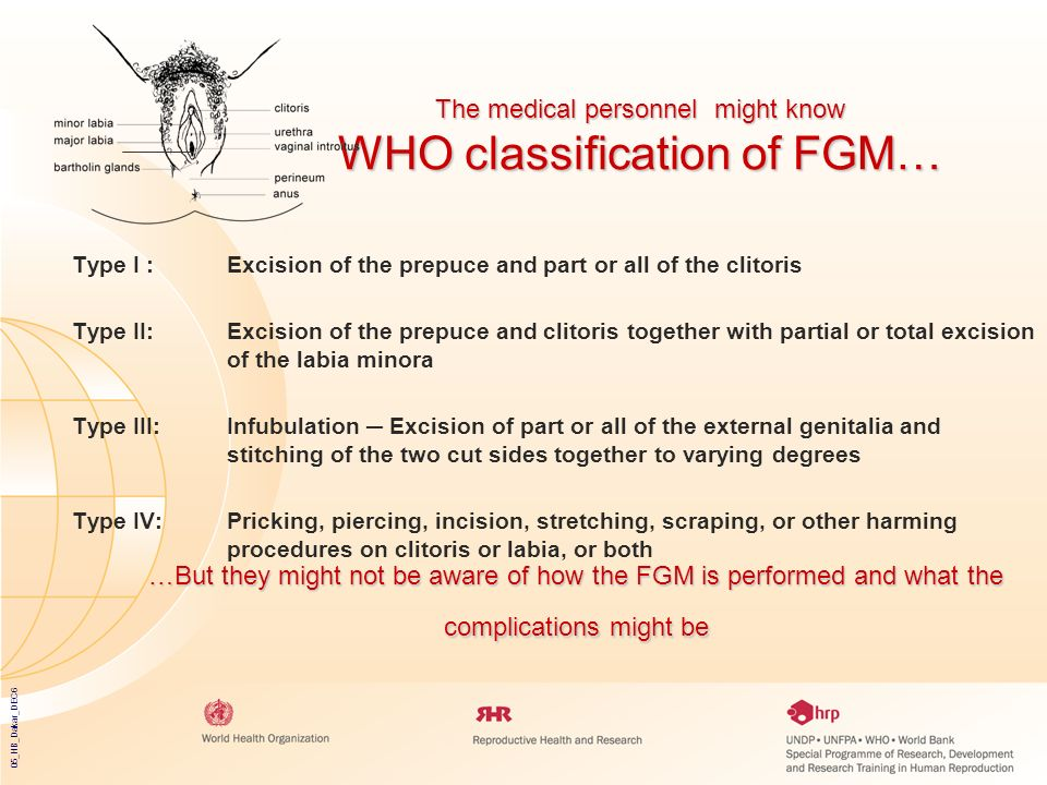 05_HB_Dakar_DEC6 The medical personnel might know WHO classification of FGM… Type I : Excision of the prepuce and part or all of the clitoris Type II: