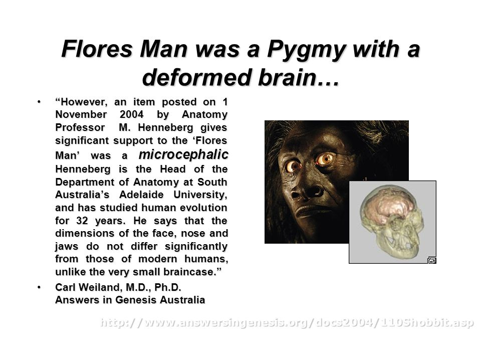 Flores Man was a Pygmy with a deformed brain… However, an item posted on 1 November 2004 by Anatomy Professor M. Henneberg gives significant support t