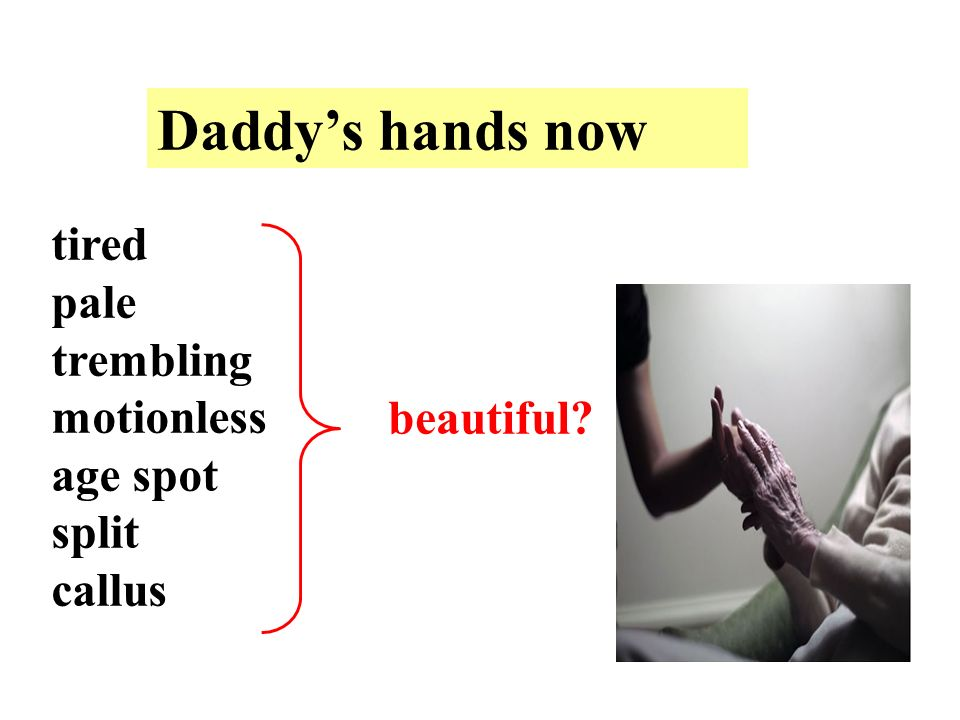tired pale trembling motionless age spot split callus beautiful Daddys hands now