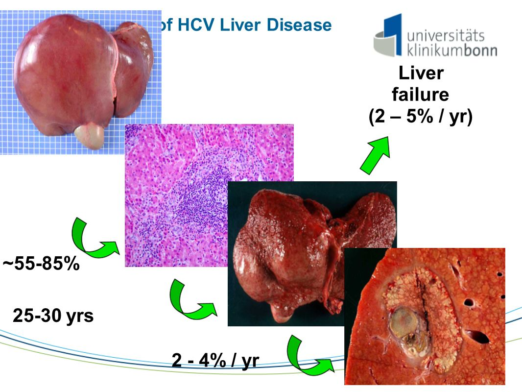 Natural History of HCV Liver Disease ~55-85% 25-30 yrs 2 - 4% / yr Liver failure (2 – 5% / yr)