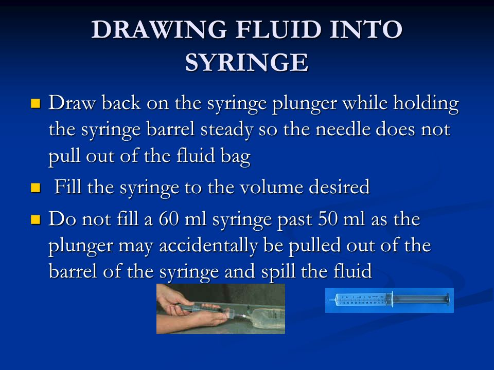 DRAWING FLUID INTO SYRINGE Draw back on the syringe plunger while holding the syringe barrel steady so the needle does not pull out of the fluid bag D