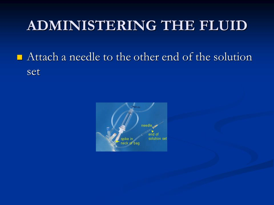 ADMINISTERING THE FLUID Attach a needle to the other end of the solution set Attach a needle to the other end of the solution set