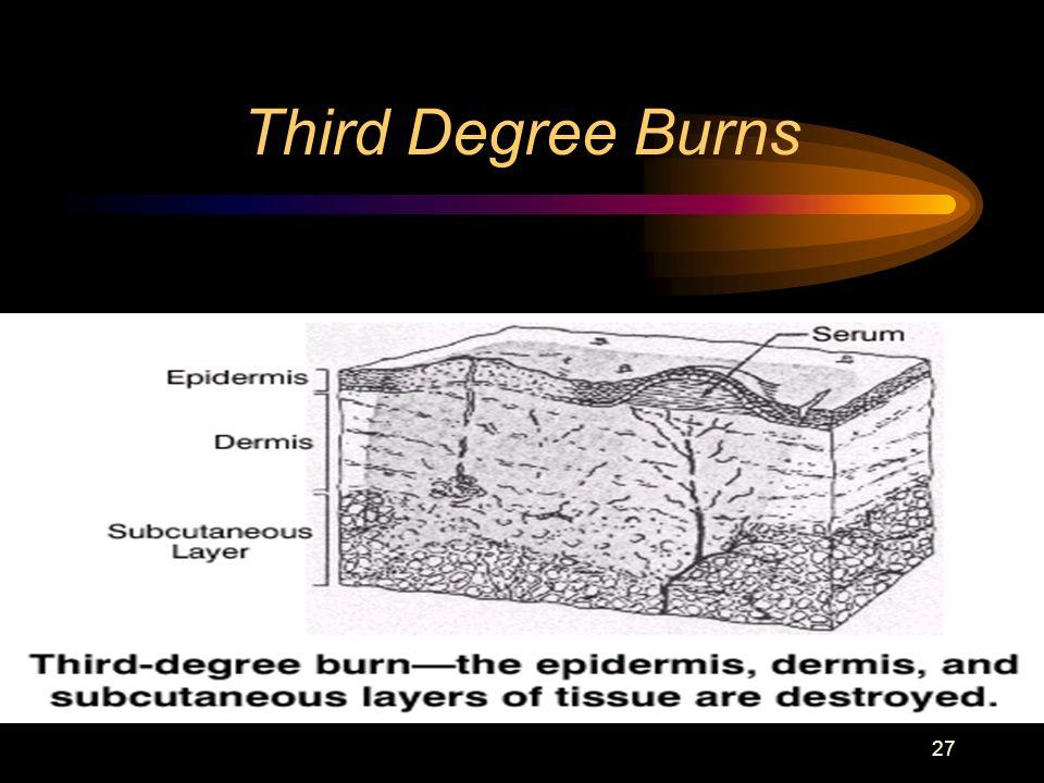 27 Third Degree Burns