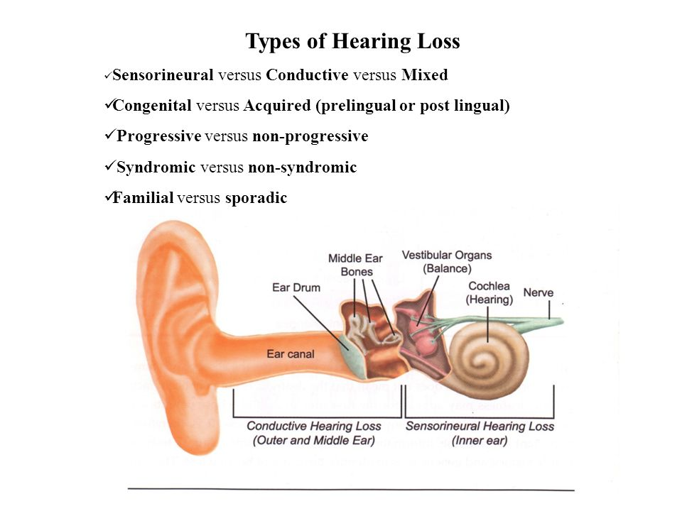 Types of Hearing Loss Sensorineural versus Conductive versus Mixed Congenital versus Acquired (prelingual or post lingual) Progressive versus non-prog