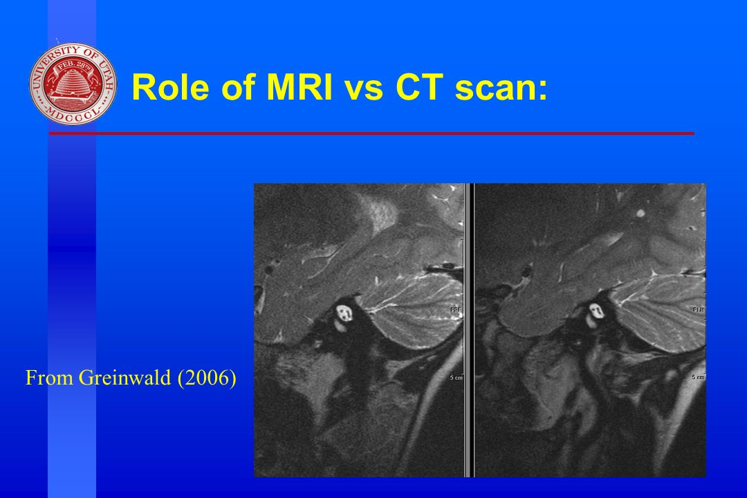 Division of Otolaryngology ~ Head & Neck Surgery, University of Utah Role of MRI vs CT scan: From Greinwald (2006)