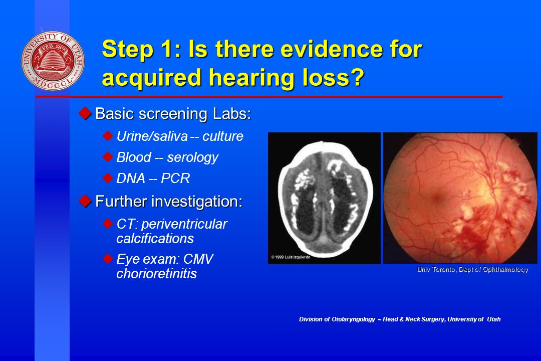 Division of Otolaryngology ~ Head & Neck Surgery, University of Utah Step 1: Is there evidence for acquired hearing loss? uBasic screening Labs: uUrin