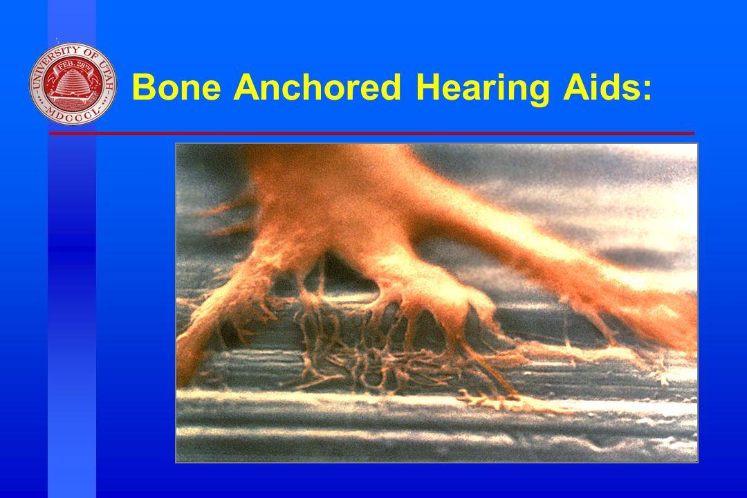 Division of Otolaryngology ~ Head & Neck Surgery, University of Utah Bone Anchored Hearing Aids: