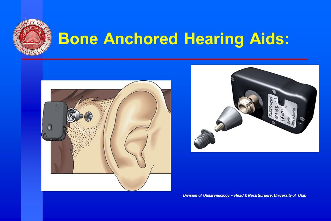 Division of Otolaryngology ~ Head & Neck Surgery, University of Utah Bone Anchored Hearing Aids: