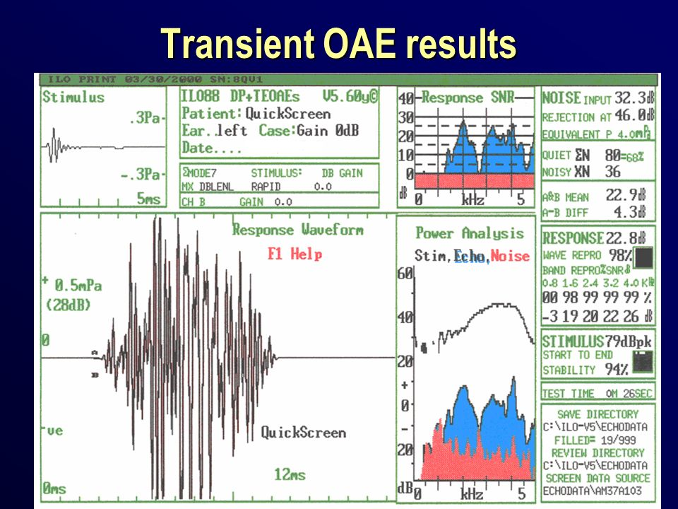 Transient OAE results