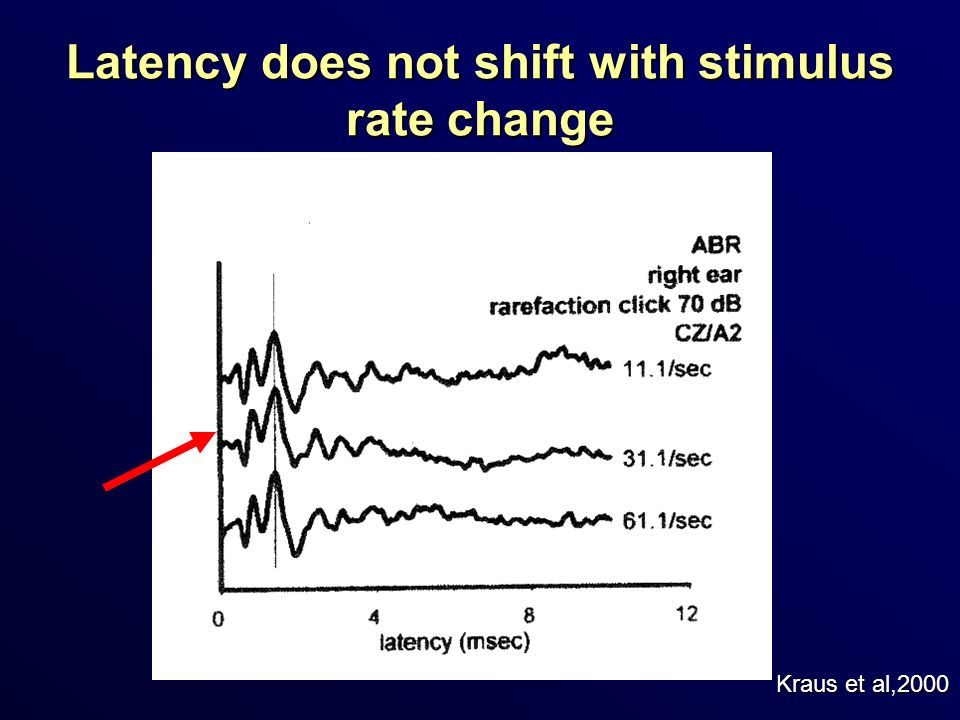 Latency does not shift with stimulus rate change Kraus et al,2000