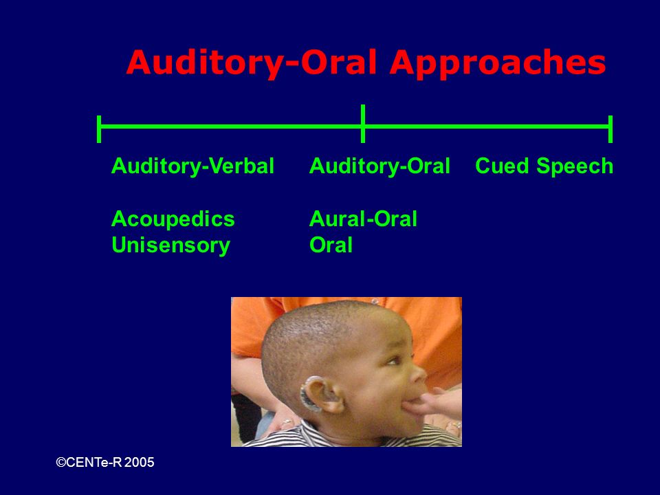 ©CENTe-R 2005 Auditory-Oral Approaches Auditory-VerbalAuditory-Oral Cued Speech AcoupedicsAural-Oral UnisensoryOral