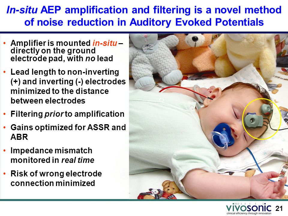 21 In-situ AEP amplification and filtering is a novel method of noise reduction in Auditory Evoked Potentials Amplifier is mounted in-situ – directly