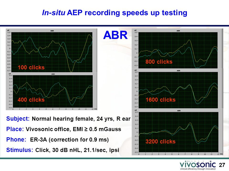 27 In-situ AEP recording speeds up testing 100 clicks 400 clicks Subject: Normal hearing female, 24 yrs, R ear Place: Vivosonic office, EMI 0.5 mGauss