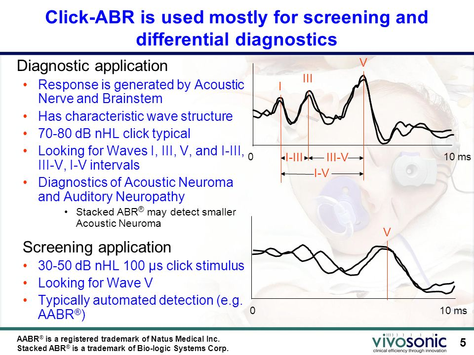 5 Click-ABR is used mostly for screening and differential diagnostics Diagnostic application Response is generated by Acoustic Nerve and Brainstem Has