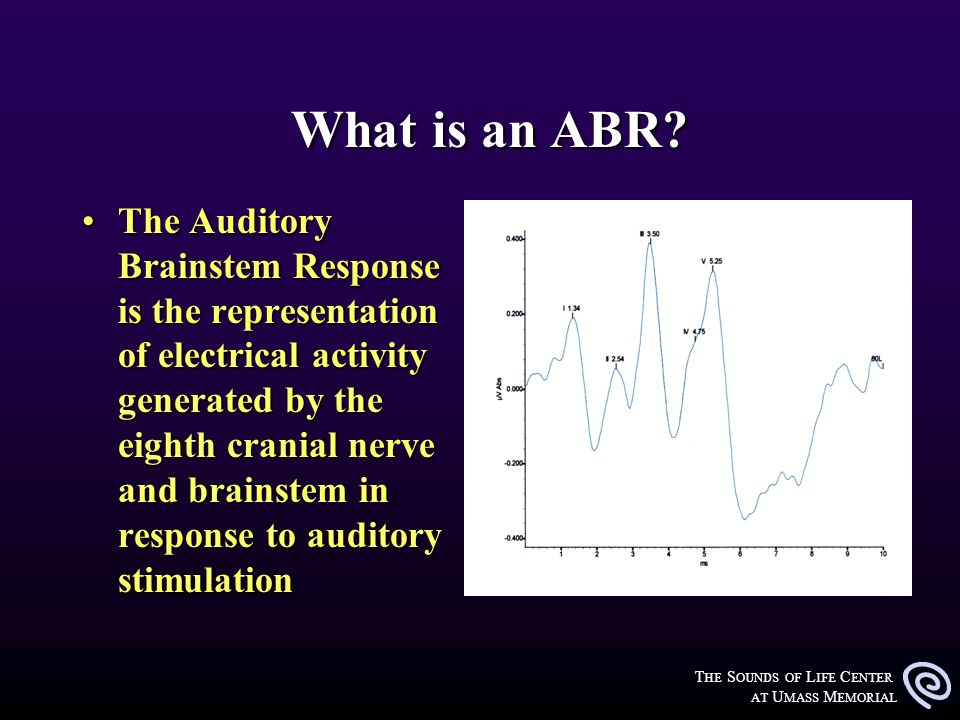T HE S OUNDS OF L IFE C ENTER AT U MASS M EMORIAL What is an ABR? What is an ABR? The Auditory Brainstem Response is the representation of electrical