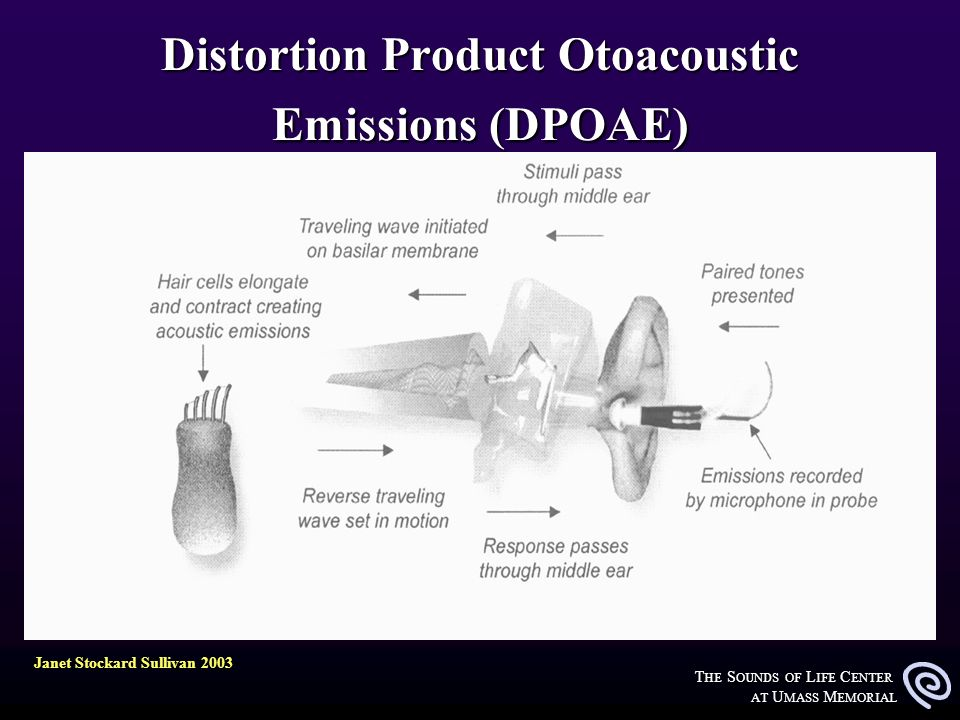 T HE S OUNDS OF L IFE C ENTER AT U MASS M EMORIAL Distortion Product Otoacoustic Emissions (DPOAE) Janet Stockard Sullivan 2003