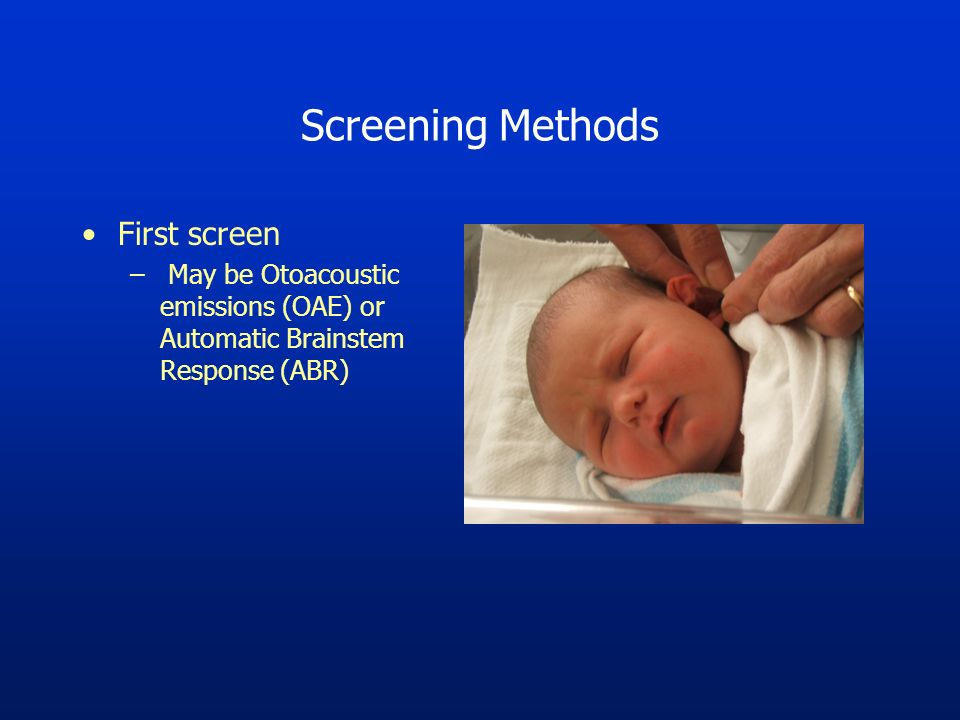 Screening Methods First screen – May be Otoacoustic emissions (OAE) or Automatic Brainstem Response (ABR)
