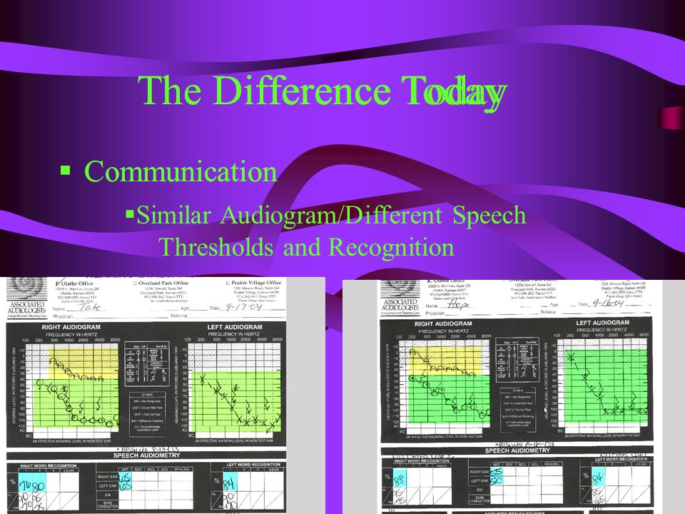 The Difference Today Communication Similar Audiogram/Different Speech Thresholds and Recognition The Difference Today Communication