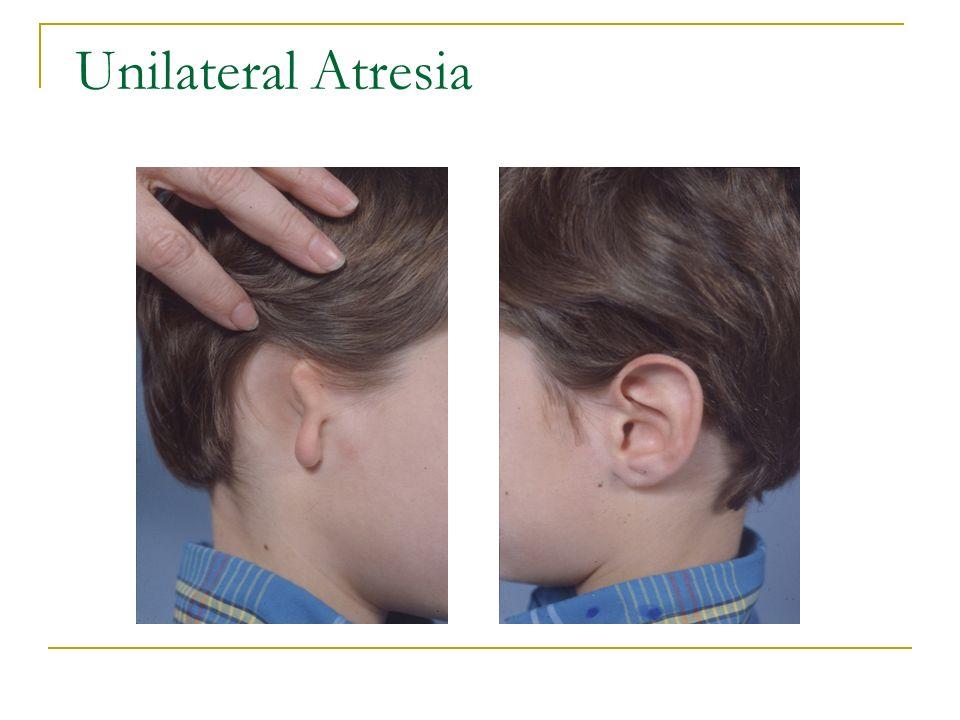Unilateral Atresia