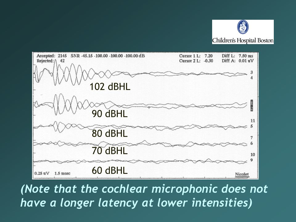 102 dBHL 90 dBHL 80 dBHL 70 dBHL 60 dBHL (Note that the cochlear microphonic does not have a longer latency at lower intensities)