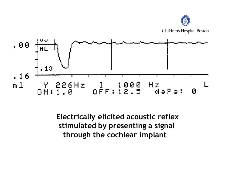 Electrically elicited acoustic reflex stimulated by presenting a signal through the cochlear implant