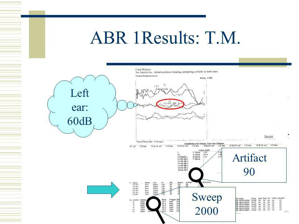 ABR 1Results: T.M. Artifact 90 Sweep 2000 Left ear: 60dB