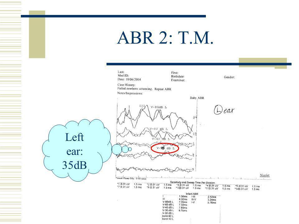 ABR 2: T.M. Left ear: 35dB