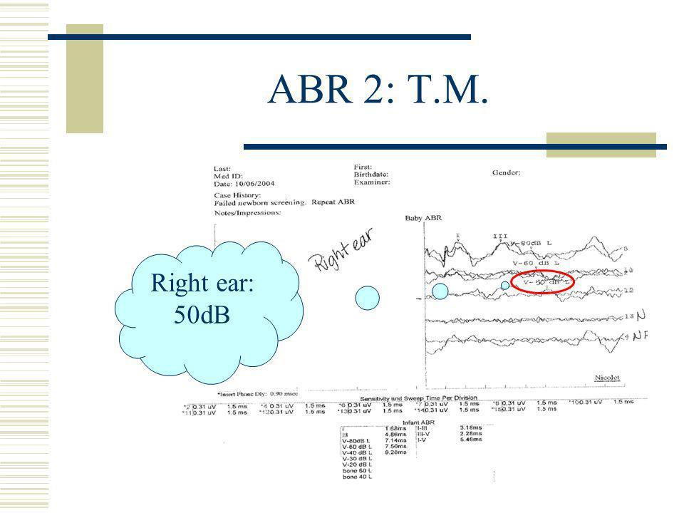 ABR 2: T.M. Right ear: 50dB