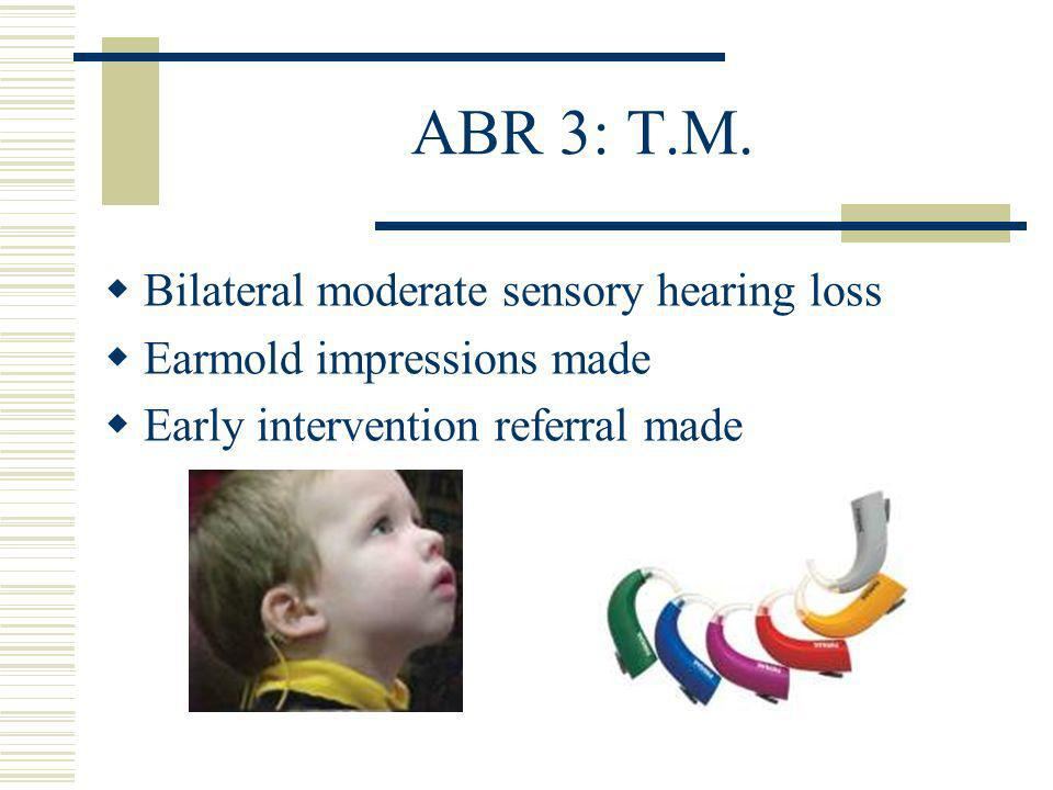 Bilateral moderate sensory hearing loss Earmold impressions made Early intervention referral made