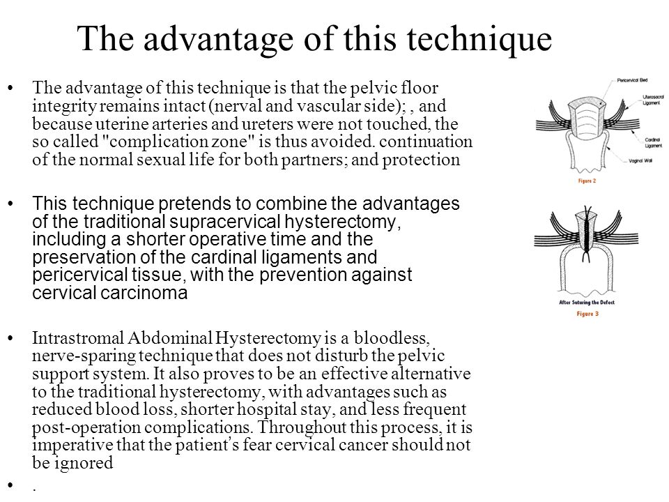 The advantage of this technique The advantage of this technique is that the pelvic floor integrity remains intact (nerval and vascular side);, and bec