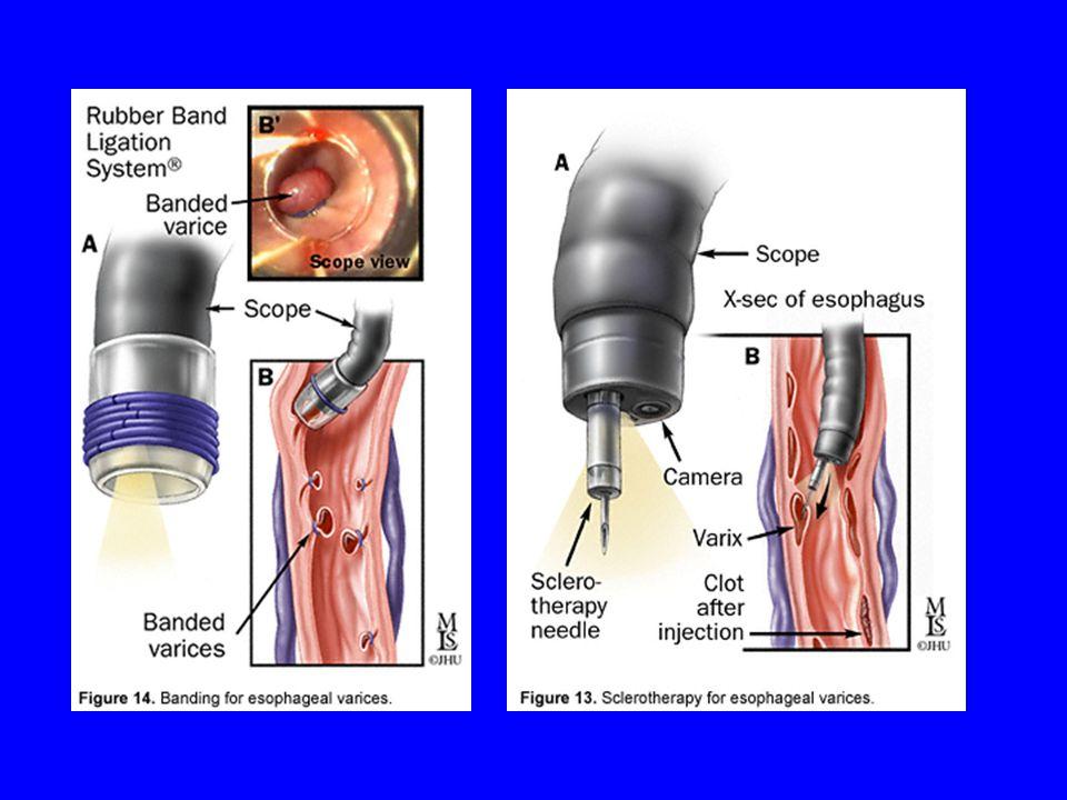 Esophageal Variceal Bleeding Medical = octreotide (72 hours) or somatostatin forget vasopressin Endoscopic = ligation (banding), sclerotherapy