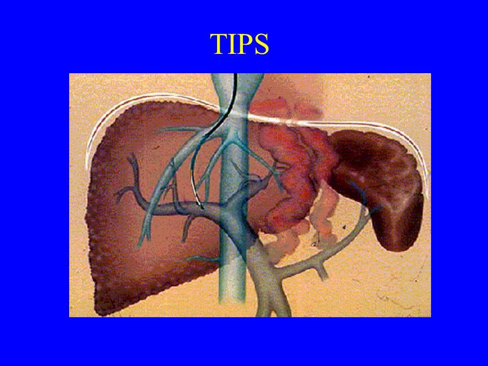 Esophageal Varices TIPS = transjugular intrahepatic portosystemic shunts or Surgical Shunts = desperate measures