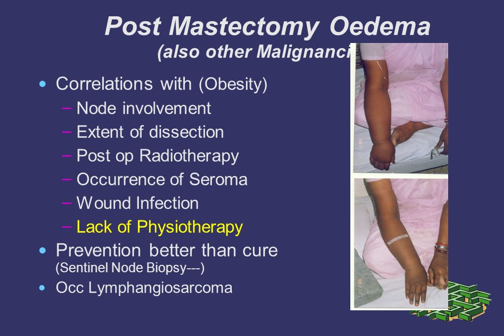 Post Mastectomy Oedema (also other Malignancies) Correlations with (Obesity) – Node involvement – Extent of dissection – Post op Radiotherapy – Occurrence of Seroma – Wound Infection – Lack of Physiotherapy Prevention better than cure (Sentinel Node Biopsy---) Occ Lymphangiosarcoma