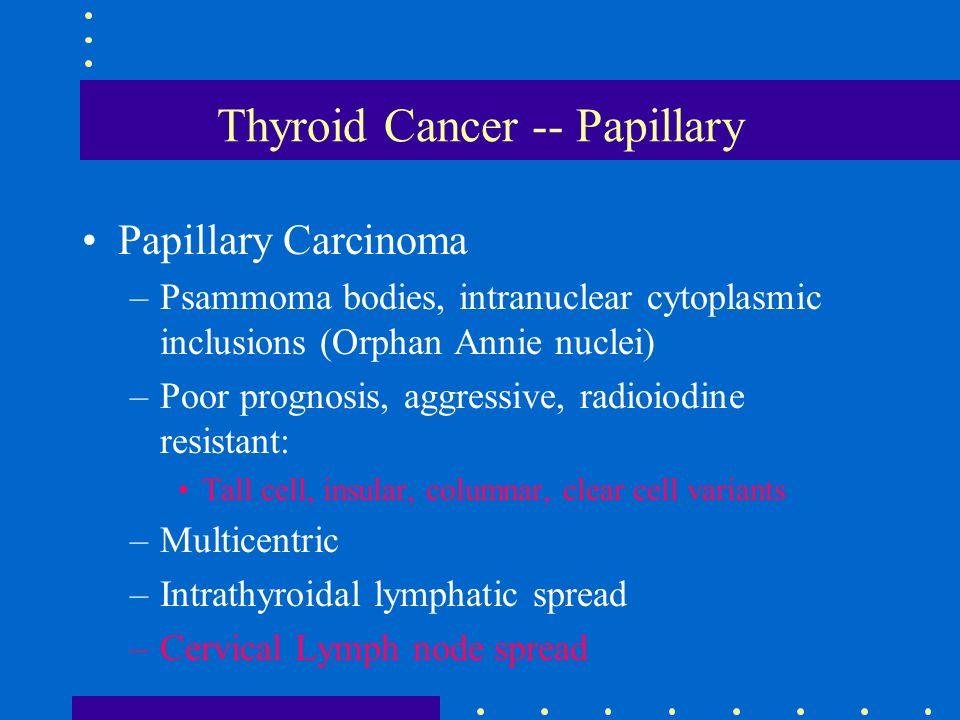 Thyroid Cancer -- Papillary Papillary Carcinoma –Psammoma bodies, intranuclear cytoplasmic inclusions (Orphan Annie nuclei) –Poor prognosis, aggressiv
