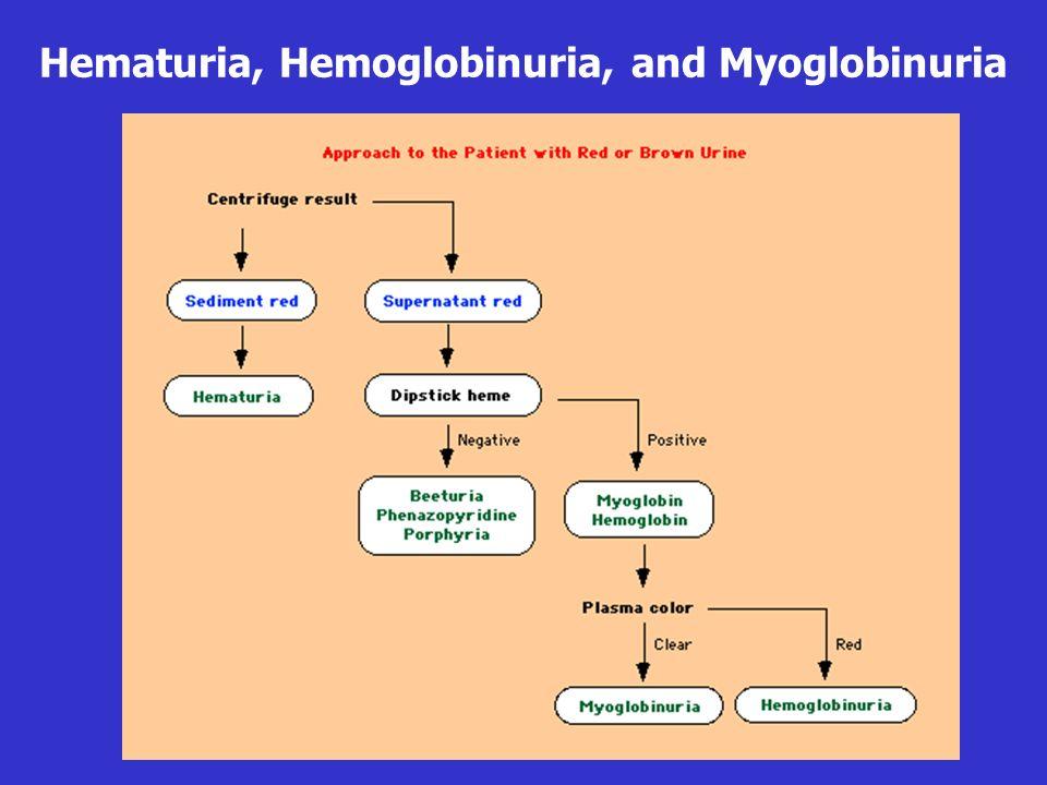 Hematuria, Hemoglobinuria, and Myoglobinuria