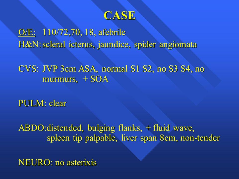 CASE O/E:110/72,70, 18, afebrile H&N:scleral icterus, jaundice, spider angiomata CVS:JVP 3cm ASA, normal S1 S2, no S3 S4, no murmurs, + SOA PULM: clea