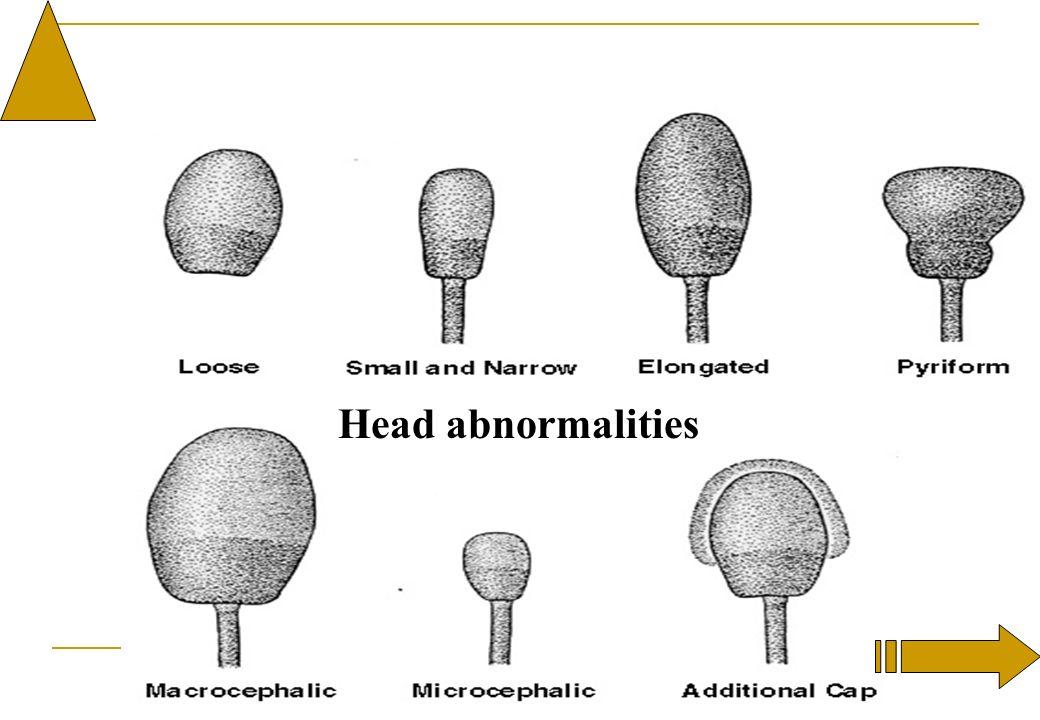 Head abnormalities
