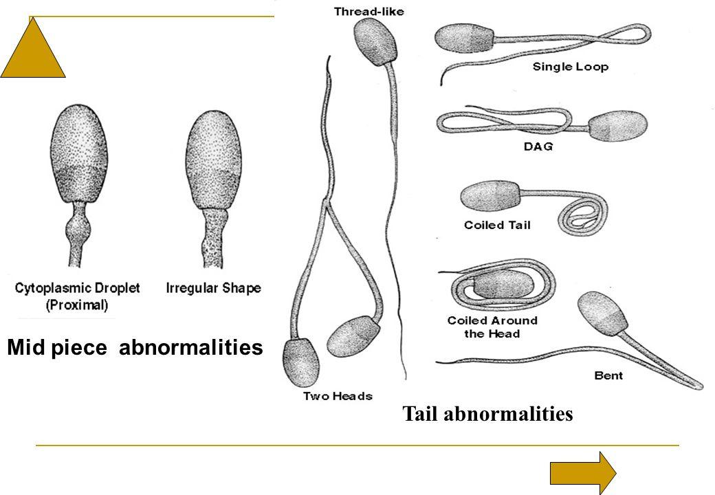Mid piece abnormalities Tail abnormalities