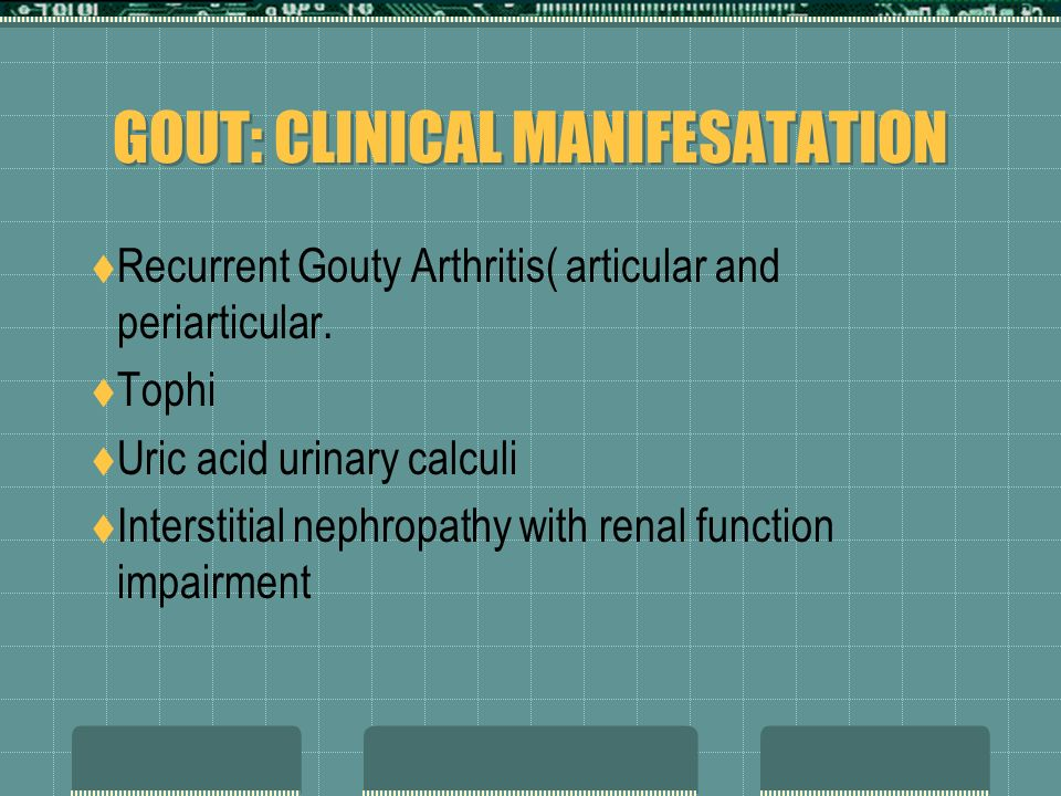 Stages of Gout Prolonged a symptomatic hyperuricemia(years) Acute intermittent Gout Chronic tophaceous Gout