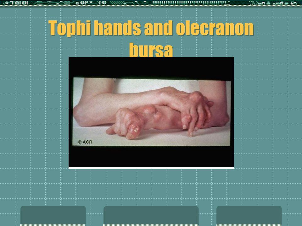 Tophacous Gout