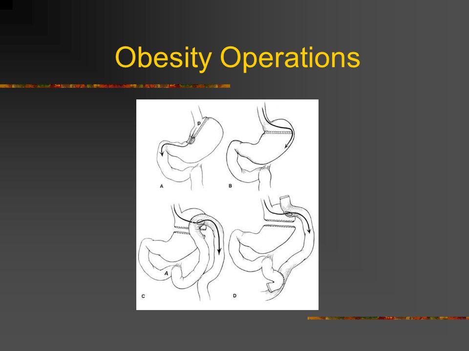 Obesity Operations