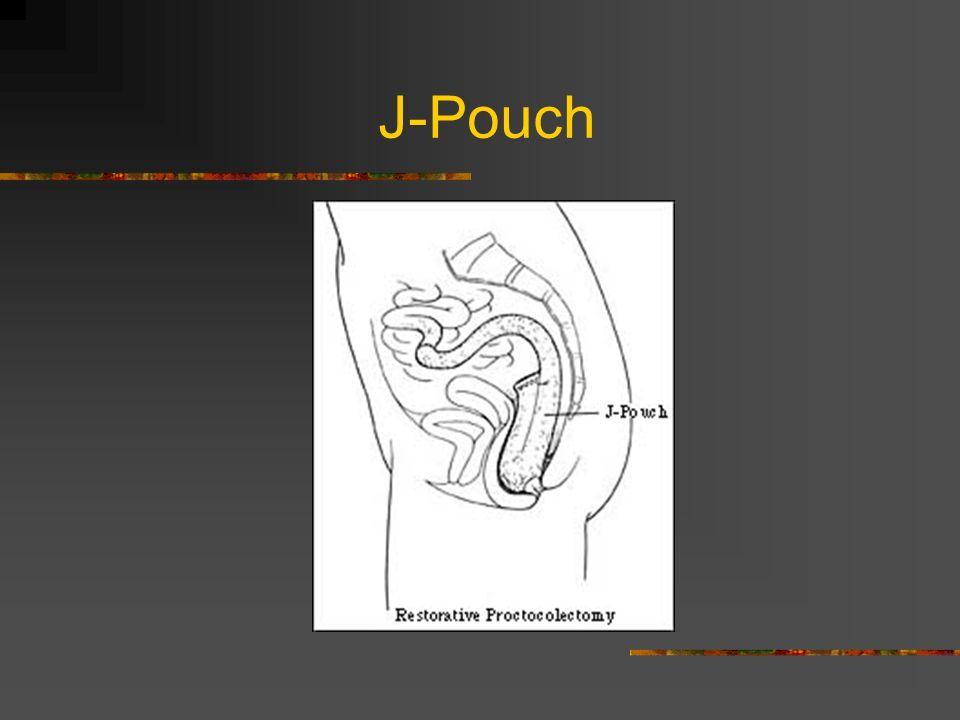 J-Pouch