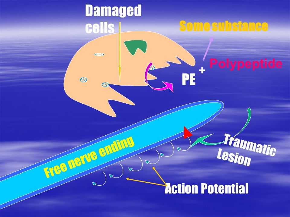 Traumatic Lesion Action Potential Free nerve ending Damaged cells PE Polypeptide + Some substance