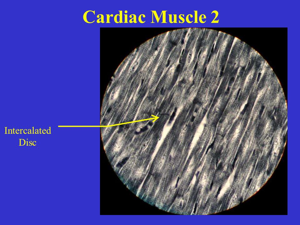 Cardiac Muscle 2 Intercalated Disc