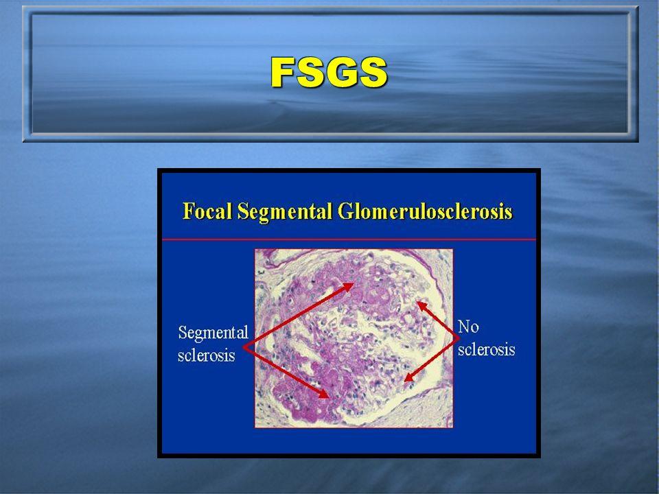 FSGSFSGS