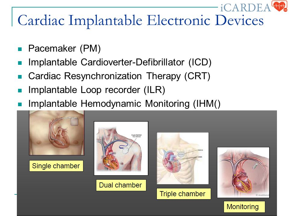 Cardiac Implantable Electronic Devices Pacemaker (PM) Implantable Cardioverter-Defibrillator (ICD) Cardiac Resynchronization Therapy (CRT) Implantable Loop recorder (ILR) Implantable Hemodynamic Monitoring (IHM() September 23, rd Plenary HL7 WG Meeting, Atlanta, IEEE 11073, ISO TC215 WG7 3